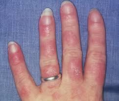Chronic Lupus Panniculitis