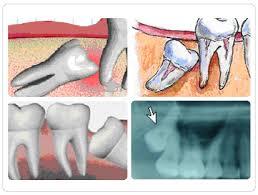 Dişlerin Gelişim Bozuklukları Hakkında Kısa Bilgi