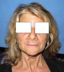 all on 4 6 prettau fixed implant bridge lip and support