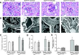 human recombinant ace2 reduces the progression of diabetic