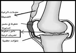 الآم الركبه والغضروف وطرق العلاج
