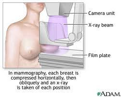 Basically  the mammography is utilized in the detection of breast cancer by taking pictures of this tissue in numerous