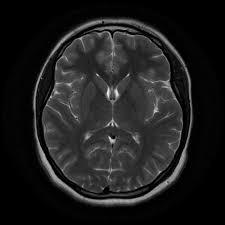 Brain Mri Anatomy Normal Brain Mri Radiology Case Radiopaedia Org