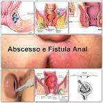 Abscesso e <b>fístula</b> anal