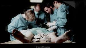 bbc future the macabre fate of u0027beating heart corpses u0027