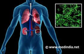 dans Recherche Santé Medecine Pharmacie