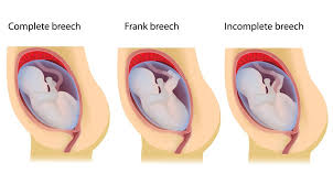 Breech Presentation   Breech Births