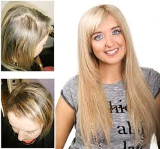 Measures To Prevent Hair Loss Lauren Suffers From A Not So Common Form Of Hair Loss Caused By