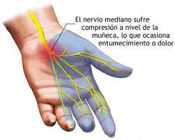 dolor en las manos por neuropatia