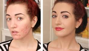 what is the best makeup to cover acne saubhaya makeup