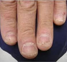 toenail fungus laser treatment cosmedics skin clinics