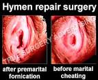 hymen before and after pictures