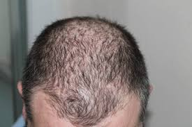 Measures To Prevent Hair Loss Reduce Hair Loss Naturally All Natural Ideas