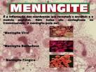 <b>Meningite Fúngica</b>