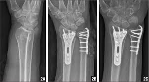 Preoperative radiograph of a    year old woman with a distal ulna fracture