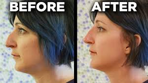 people get the 5 minute nose job youtube