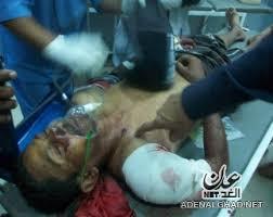 الى من اراد الحقيقه عن المظاهرات والقتل وكل ما يحدث في اليمن حالياً (الوجهه الحقيقي) Images?q=tbn:ANd9GcR7EV4FF4o_06APUSj58_niJ-7kdOO7UYz3oJhyR2BHBdZJ08sB&t=1