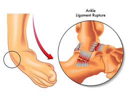 Anterior Talofibular Ligament Repair Ankle Arthroscopy And Ankle Ligament Reconstruction Murdoch