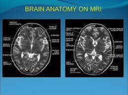 Brain Mri Anatomy Brain Anatomy