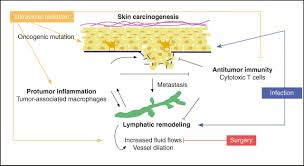 lymphatic vessels inflammation and immunity in skin cancer