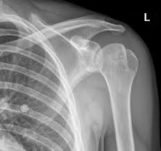 images about General Radiology   XRay on Pinterest