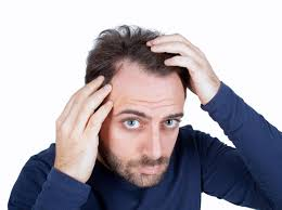 Shampoo For Dry Hair And Hair Loss 11 Best Classification Of Hair Loss In Men Images On Pinterest