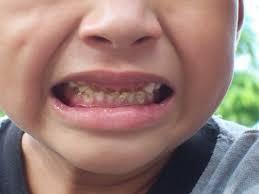 %name Diş Çürümesinin Temel Sebepleri