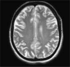 Brain Mri Anatomy Normal Axial Centrum Semiovale