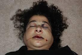 Fatima face