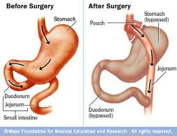 Gastric Bypass Operation