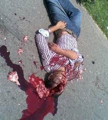 الى من لدية ضمير في اليمن ... هناك مأساة حقيقه في جامعه صنعاء .. والاعلام يضللكم ... اتقوا الله Images?q=tbn:ANd9GcRrTLcID5m95V93WmbLuEDdttF2v3YzJLoU_DgWTttGcGy2gSFM&t=1