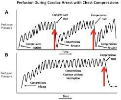 beyond acls cpr defibrillation and epinephrine r e b e l em