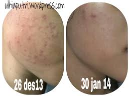 Acne Night Cream Larissa Review Dan Analisa Mizon Snail Skincare Korea Wrinkle