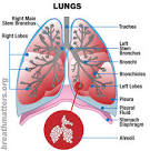 What is COPD? | Breath Matters | Support Group of Virginia