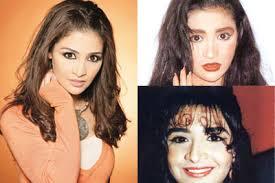 صور بعض الفنانات قبل عمليات التجميل images?q=tbn:ANd9GcS