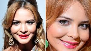 Geisy Arruda: antes e depois das plásticas – fotos