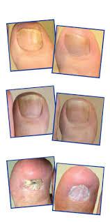 laser treatment for fungal toenails toronto ontario chiropodist
