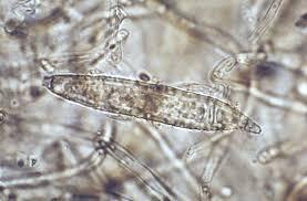 Microsporum audouinii