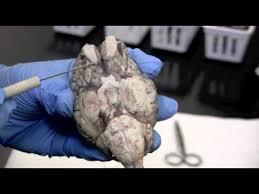 Sheep Brain Anatomy Game Sheep Brain Dissection Pt 1 0f 2 Youtube