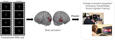 Childhood IQ and risk of bipolar disorder in adulthood