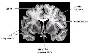 Brain Mri Anatomy Brain Mri Anatomy Radiology Anatomy Images