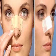 Cirurgia plástica para afinar nariz