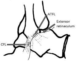 Anterior Talofibular Ligament Repair Management Of Sports Injuries Of The Foot And Ankle The Bone