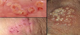 Genital herpes  a hidden disease     Beat Herpes Partners  relatives or friends may also find it helpful  They may also notice an abnormal discharge and pain when they urinate  Instead  be casual  direct