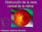 Obstrucción de la <b>vena</b> central