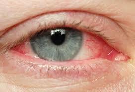 نصائح للتخلص من إحمرار العينين images?q=tbn:ANd9GcS