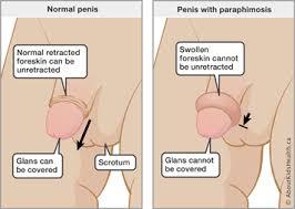 foreskin penis|Simple Wikipedia