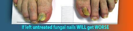 nail and toe laser fungus protocol how lasers work treatment