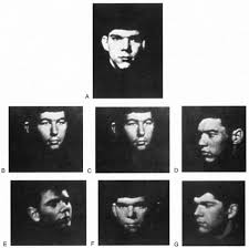 Figure 4: Example of Benton Facial Recognition Test-http://t3.gstatic.com/images?q=tbn:ANd9GcSzO_vssxGZLYKx_Jf590sNtnvJkIv3-ZqBjEqSh2cJWdfejKUO