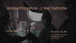 Bruce B by New Fibroid Treatment One Year After Acessa Procedure Treats 32
